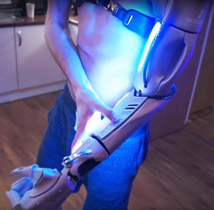 Une prothèse techno futuriste directement reliée à l'os