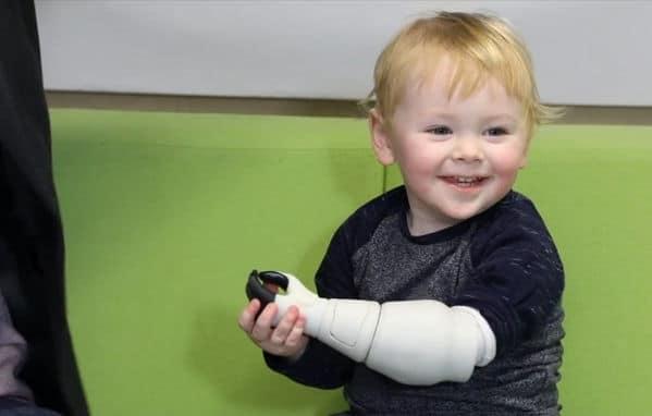 Un papa créé une prothèse en impression 3D pour son nourrisson handicapé